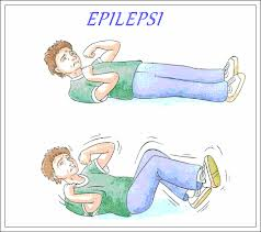 obat tradisional epilepsi